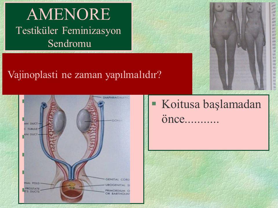 §Androjene duyarsızlık §MİF'e duyarlılık AMENORE Testiküler Feminizasyon Sendromu ? Dış genital organların kadın tipi gelişmesine rağmen vajen ve uter