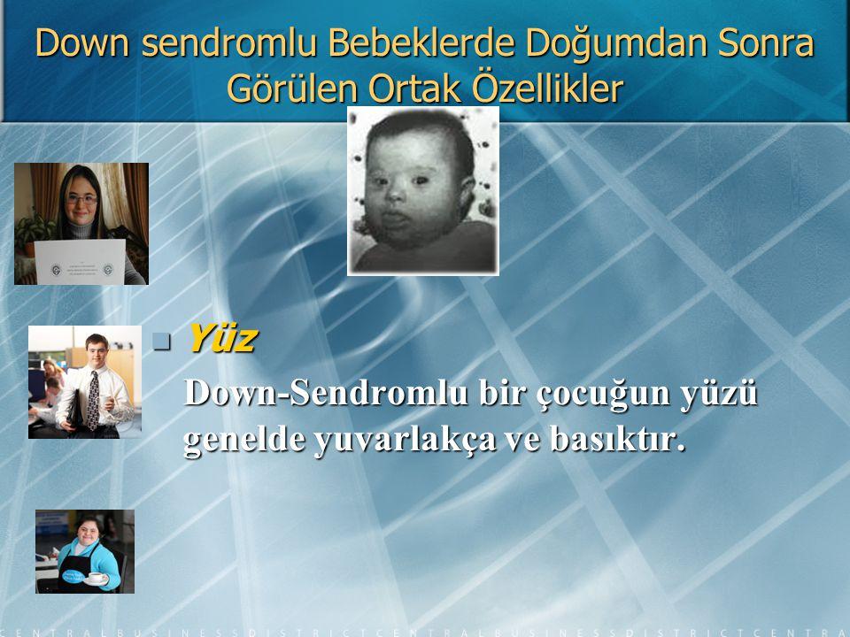 Down sendromlu Bebeklerde Doğumdan Sonra Görülen Ortak Özellikler Yüz Yüz Down-Sendromlu bir çocuğun yüzü genelde yuvarlakça ve basıktır. Down-Sendrom