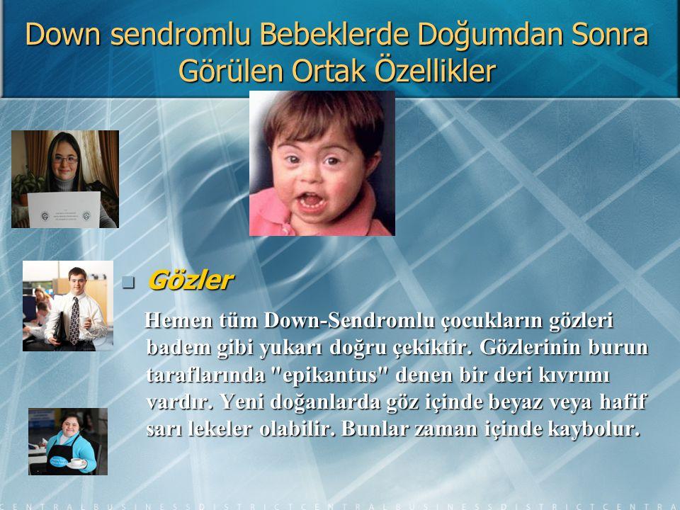Downlu Çalışanların İşyerinde Sosyal Etkileşimi Down Sendromlu bireylerin en önemli özelliklerinden birisi neşeli ve cana yakın olmalarıdır.