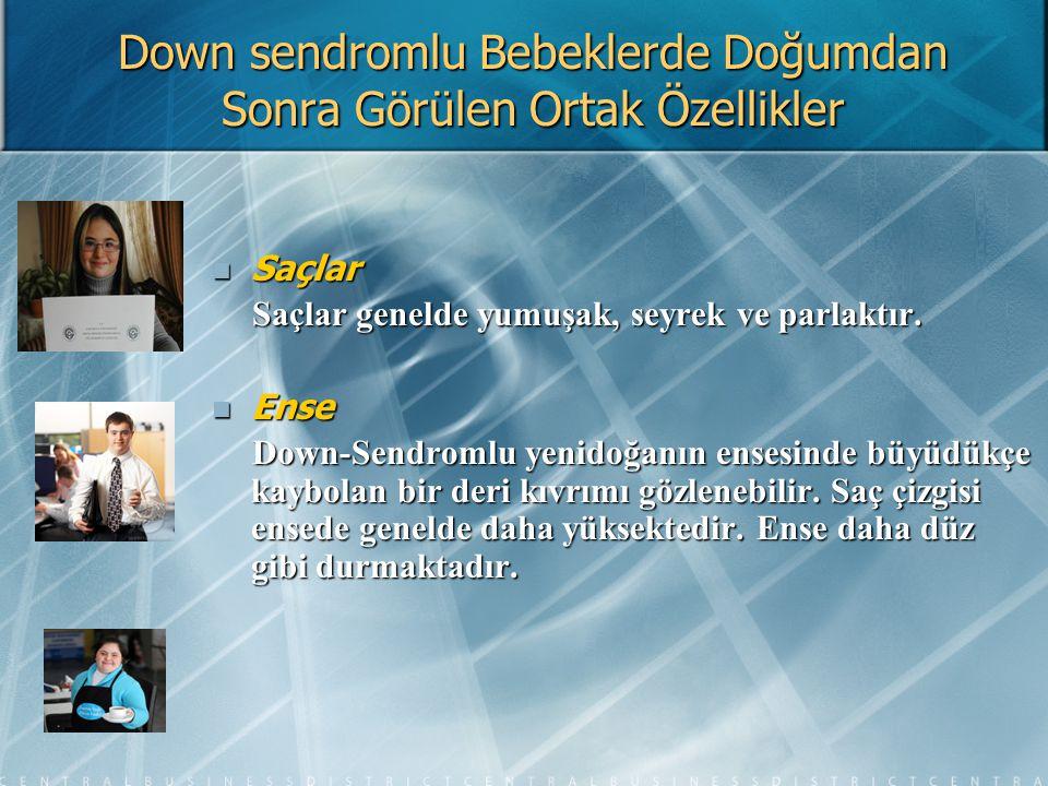 Down Sendromu İle İlgili Daha Fazla Bilgi İçin Ulaşılabilecek Adresler Down Sendromu Derneği Down Sendromu Derneği Adres: Taşocakları cad.