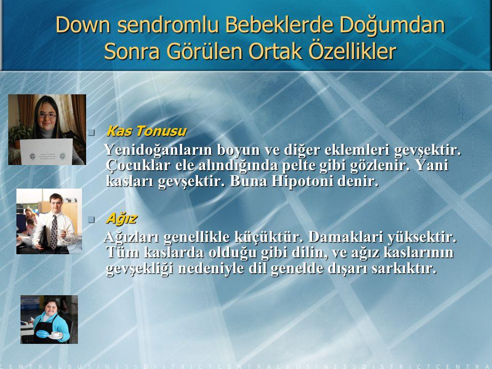 DOWN SENDROMLU GENÇLERİN FİRMAYA FAYDALARI