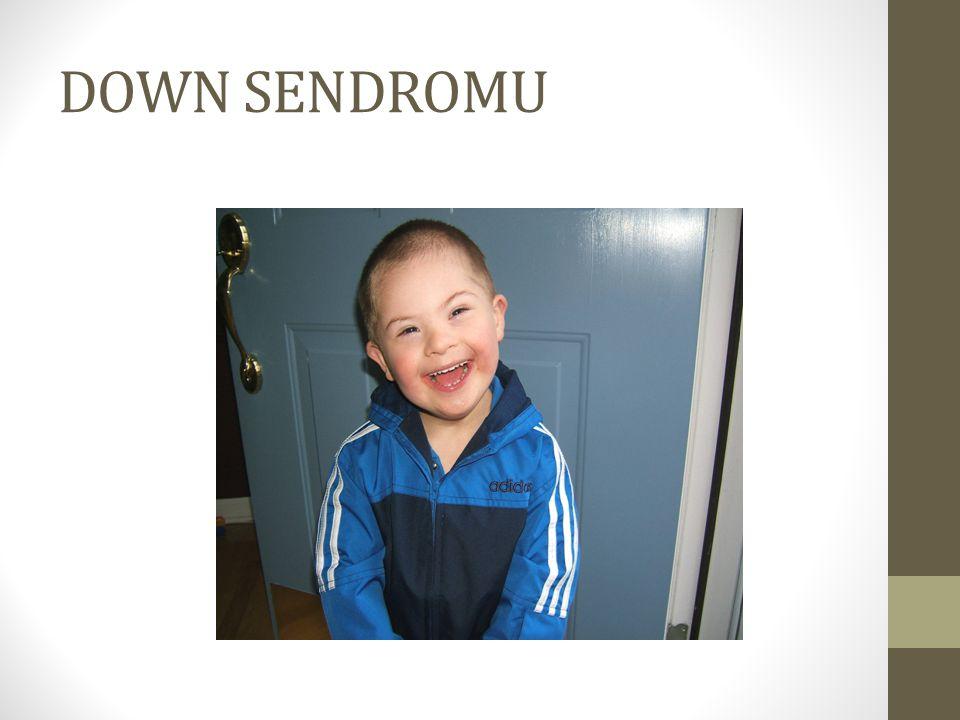 DOWN SENDROMU NEDİR .Down Sendromu, kromozomları ilgilendiren genetik bir hastalıktır.