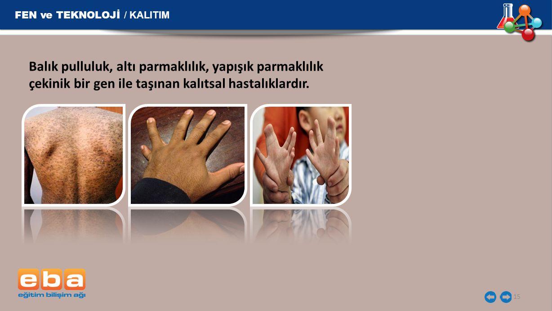 FEN ve TEKNOLOJİ / KALITIM 15 Balık pulluluk, altı parmaklılık, yapışık parmaklılık çekinik bir gen ile taşınan kalıtsal hastalıklardır.
