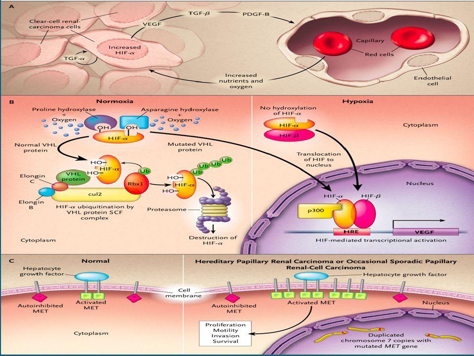 Prognoz, Tek Merkez Deneyimi (N=2385) Histoloji5 yıllık sağkalım Berrak hücreli (%83) %68,9 Papiller (%11) %87,4 Kromofob (%4,3) %86,7 Toplayıcı Kanal (%0,3) Sarkomatoid (%0,3) Sınıflanmamış (%0,7) p<0,001