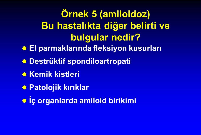 Örnek 5 (amiloidoz) Bu hastalıkta diğer belirti ve bulgular nedir.