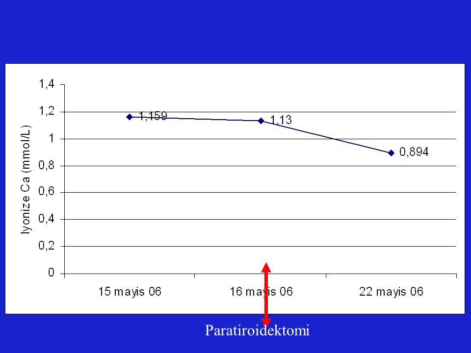 Paratiroidektomi