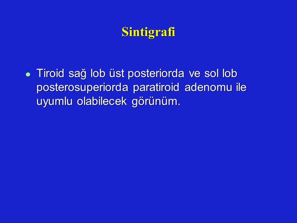 Sintigrafi l Tiroid sağ lob üst posteriorda ve sol lob posterosuperiorda paratiroid adenomu ile uyumlu olabilecek görünüm.