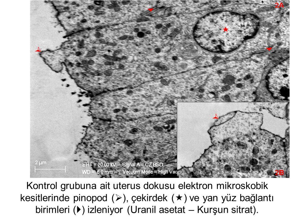 Kontrol grubuna ait uterus dokusu elektron mikroskobik kesitlerinde pinopod (  ), çekirdek (  ) ve yan yüz bağlantı birimleri (  ) izleniyor (Uranil asetat – Kurşun sitrat).