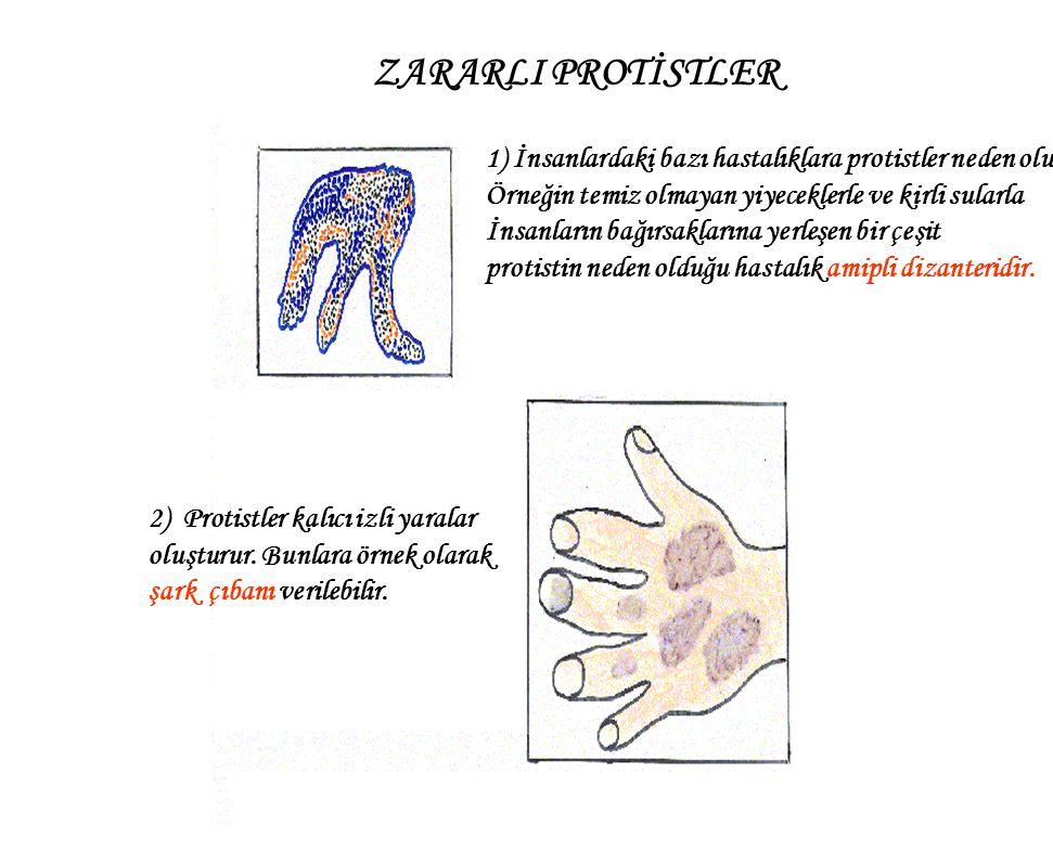 ZARARLI PROTİSTLER 1) İnsanlardaki bazı hastalıklara protistler neden olur.
