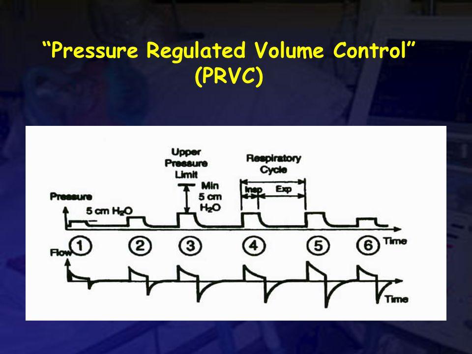 Pressure Regulated Volume Control (PRVC)