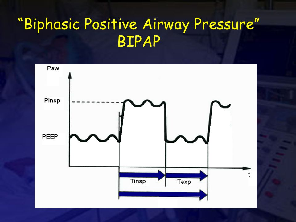 Biphasic Positive Airway Pressure BIPAP