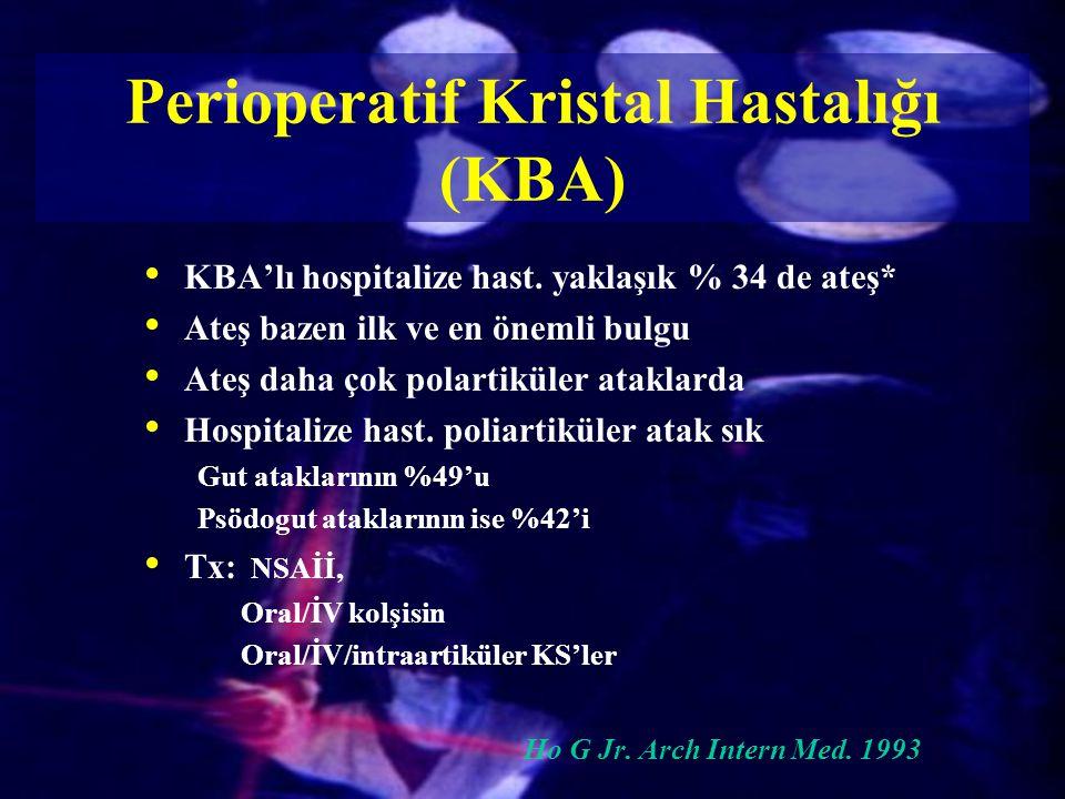KBA'lı hospitalize hast. yaklaşık % 34 de ateş* Ateş bazen ilk ve en önemli bulgu Ateş daha çok polartiküler ataklarda Hospitalize hast. poliartiküler