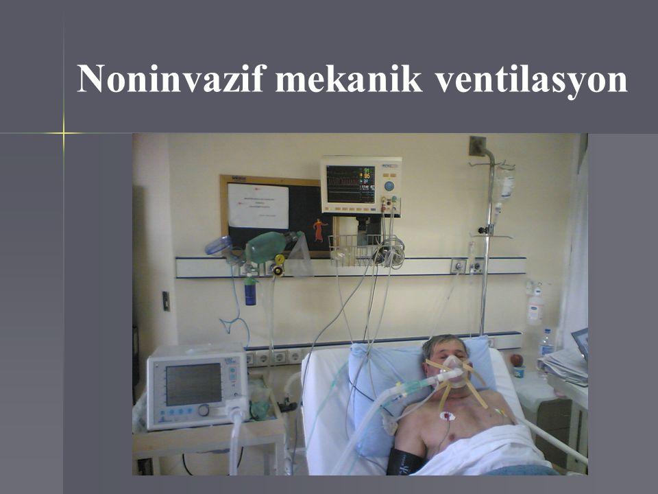 Noninvazif mekanik ventilasyon