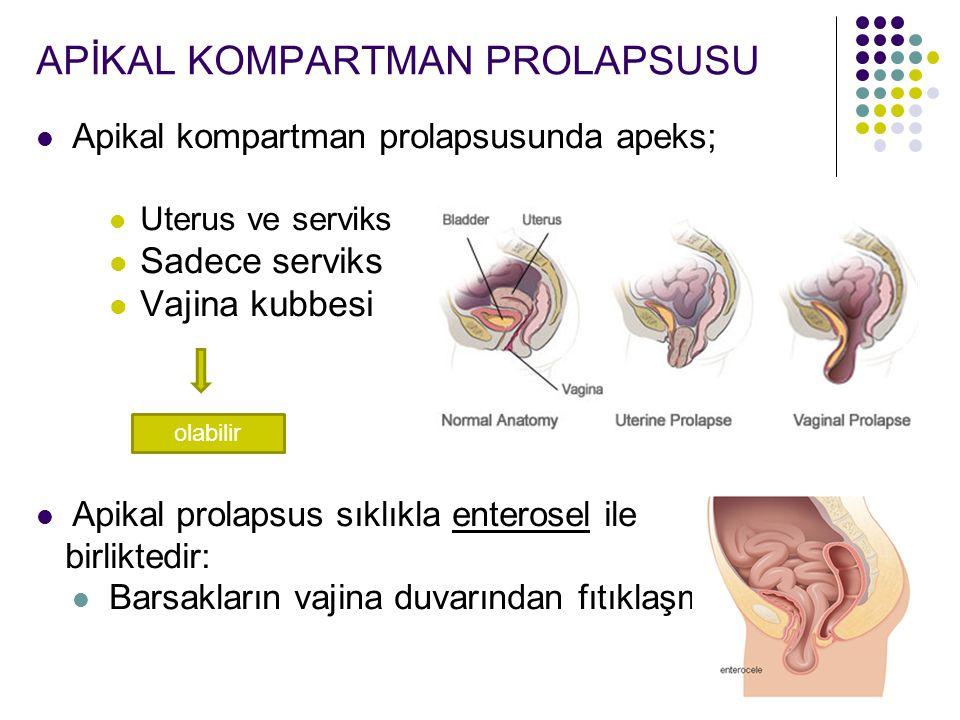 APİKAL KOMPARTMAN PROLAPSUSU Apikal kompartman prolapsusunda apeks; Uterus ve serviks Sadece serviks Vajina kubbesi Apikal prolapsus sıklıkla enterosel ile birliktedir: Barsakların vajina duvarından fıtıklaşması olabilir