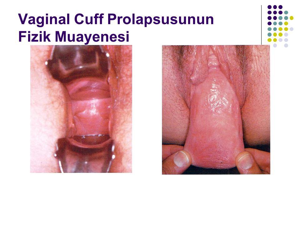 Vaginal Cuff Prolapsusunun Fizik Muayenesi