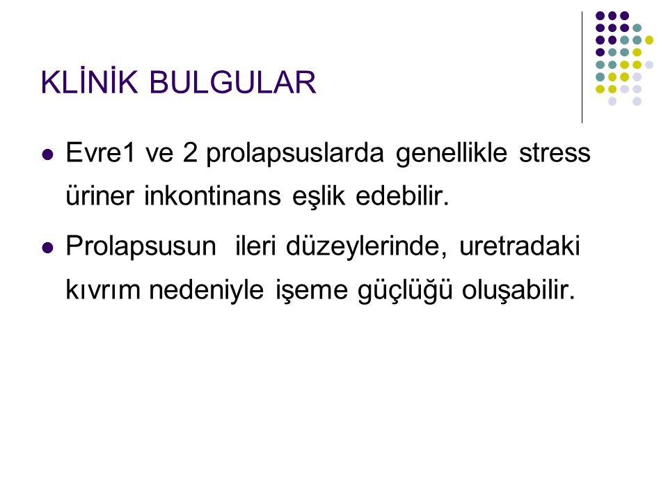 KLİNİK BULGULAR Evre1 ve 2 prolapsuslarda genellikle stress üriner inkontinans eşlik edebilir.