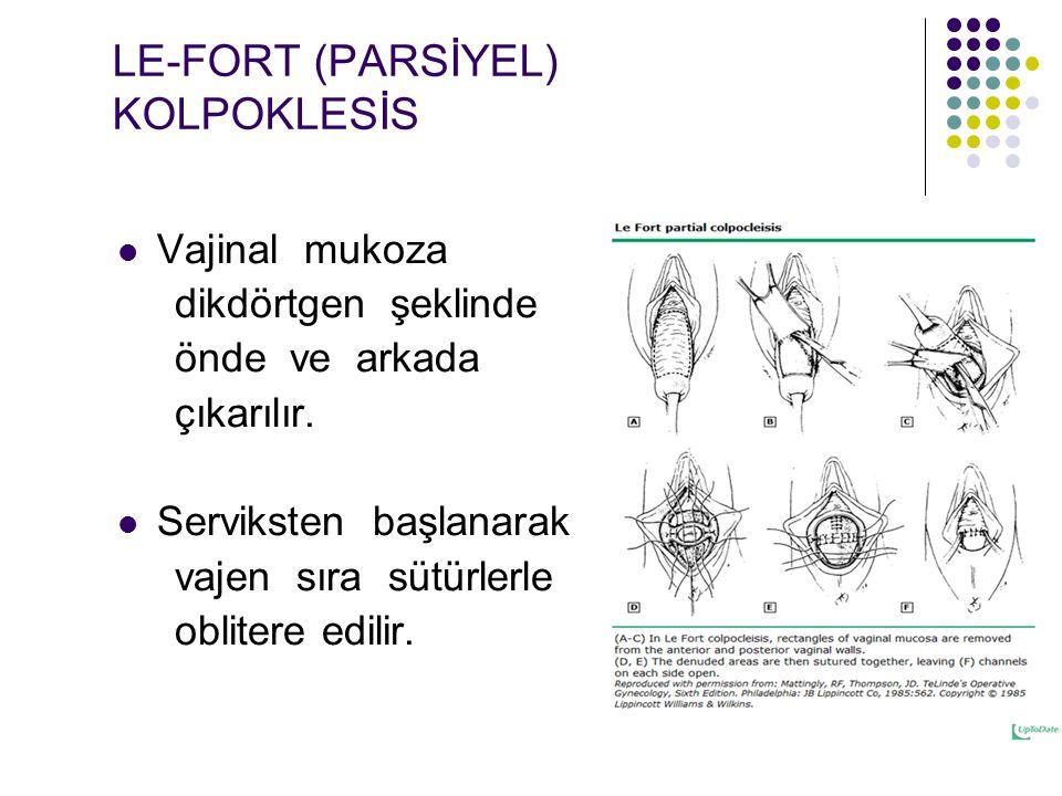 LE-FORT (PARSİYEL) KOLPOKLESİS Vajinal mukoza dikdörtgen şeklinde önde ve arkada çıkarılır.