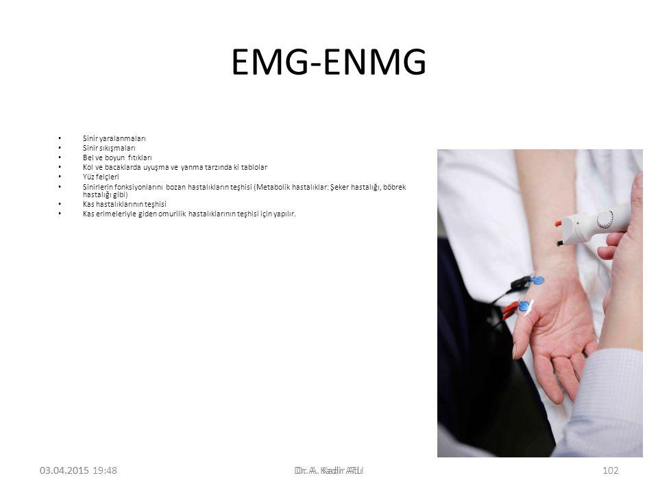EMG-ENMG Sinir yaralanmaları Sinir sıkışmaları Bel ve boyun fıtıkları Kol ve bacaklarda uyuşma ve yanma tarzında ki tablolar Yüz felçleri Sinirlerin fonksiyonlarını bozan hastalıkların teşhisi (Metabolik hastalıklar: Şeker hastalığı, böbrek hastalığı gibi) Kas hastalıklarının teşhisi Kas erimeleriyle giden omurilik hastalıklarının teşhisi için yapılır.