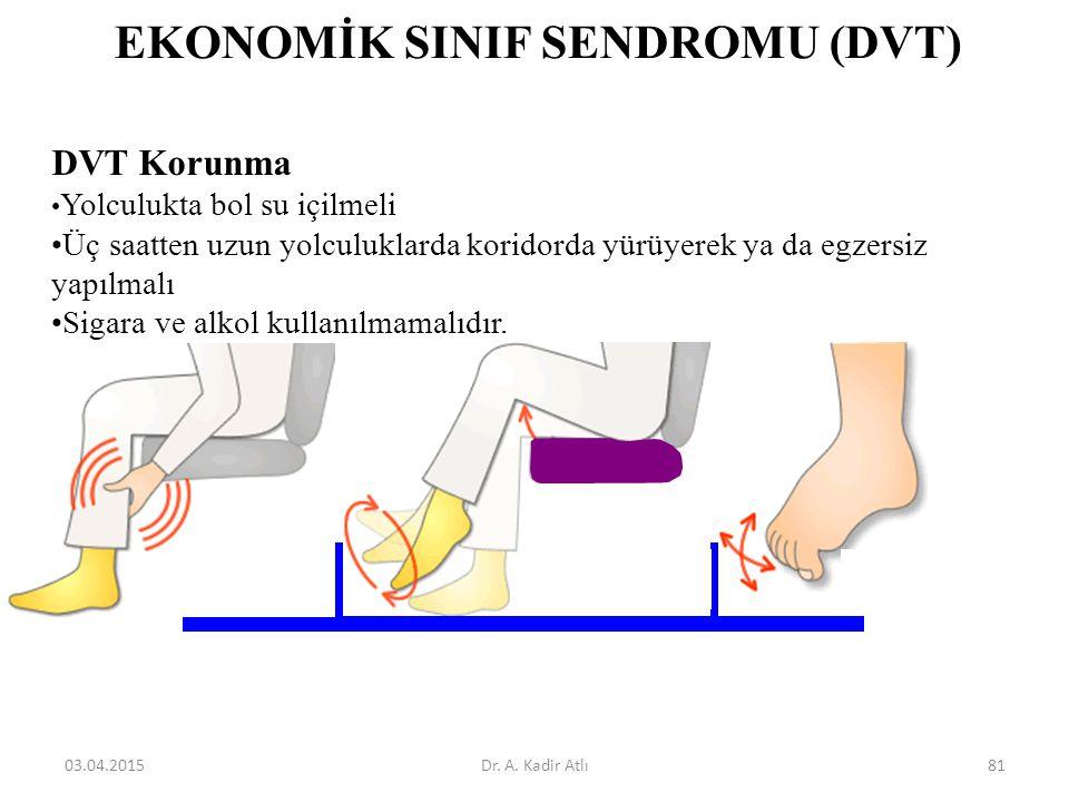 EKONOMİK SINIF SENDROMU (DVT) DVT Korunma Yolculukta bol su içilmeli Üç saatten uzun yolculuklarda koridorda yürüyerek ya da egzersiz yapılmalı Sigara ve alkol kullanılmamalıdır.