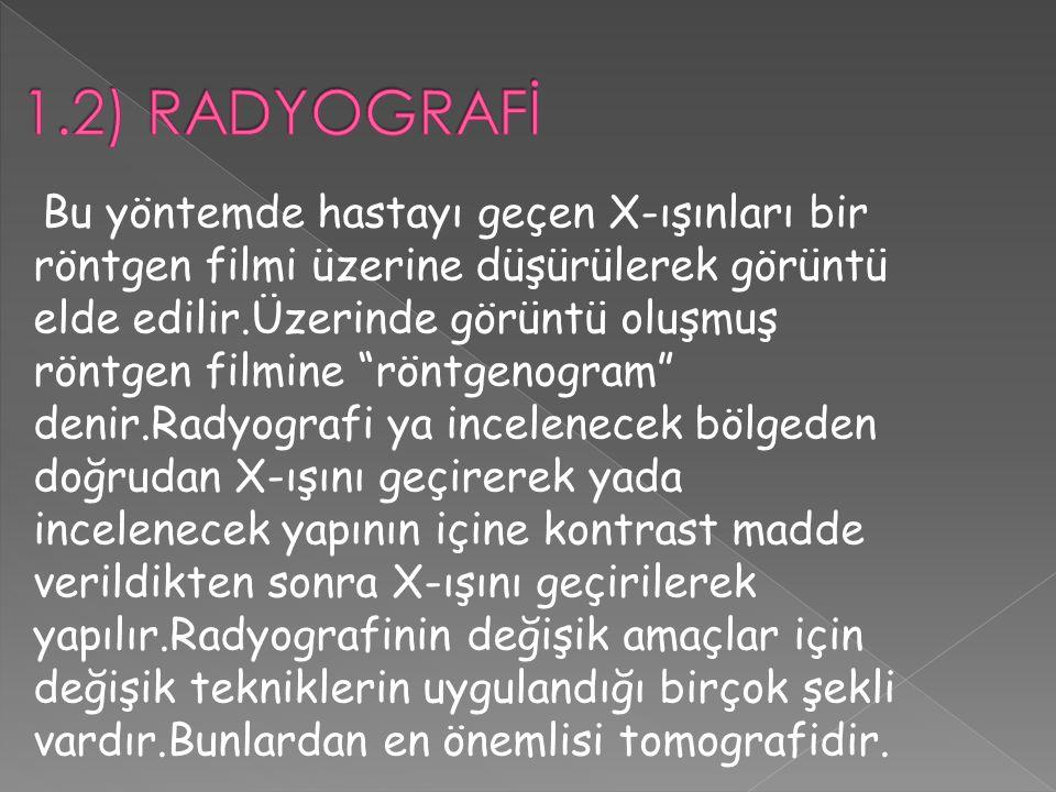 """Bu yöntemde hastayı geçen X-ışınları bir röntgen filmi üzerine düşürülerek görüntü elde edilir.Üzerinde görüntü oluşmuş röntgen filmine """"röntgenogram"""""""