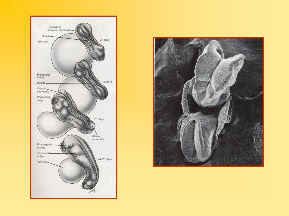 TİPLERİ Anensefali : Beyin küçük, beyin sapı ve beyincik gelişmemiş Ensefalosel : Beyin ve zarlarının kraniumdaki kemik defektinden dışarı çıkması Meningosel : Yarık omurdan meninksin dışarı çıkması Myelomeningosel : Yarık omurdan meninks ile birlikte omurilik ve spinal sinir köklerinin dışarı çıkması