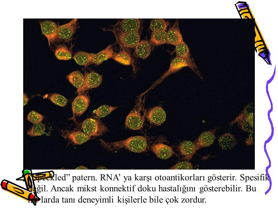 """""""Speckled"""" patern. RNA' ya karşı otoantikorları gösterir. Spesifik değil. Ancak mikst konnektif doku hastalığını gösterebilir. Bu hst larda tanı deney"""