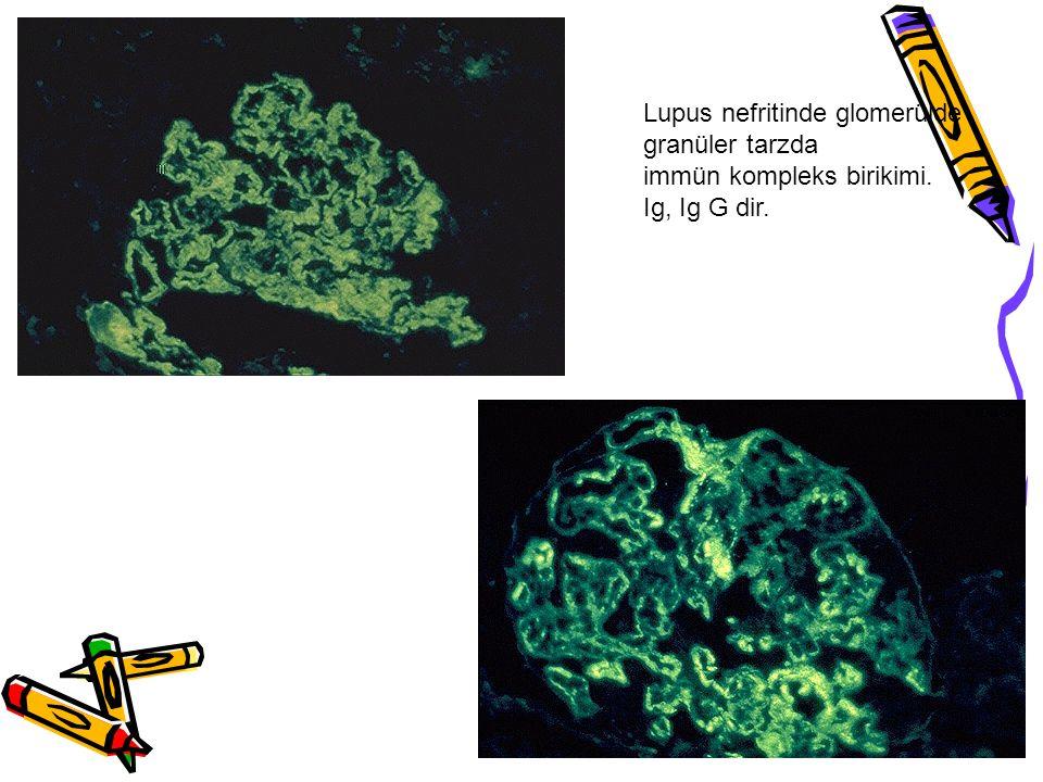 Lupus nefritinde glomerülde granüler tarzda immün kompleks birikimi. Ig, Ig G dir.