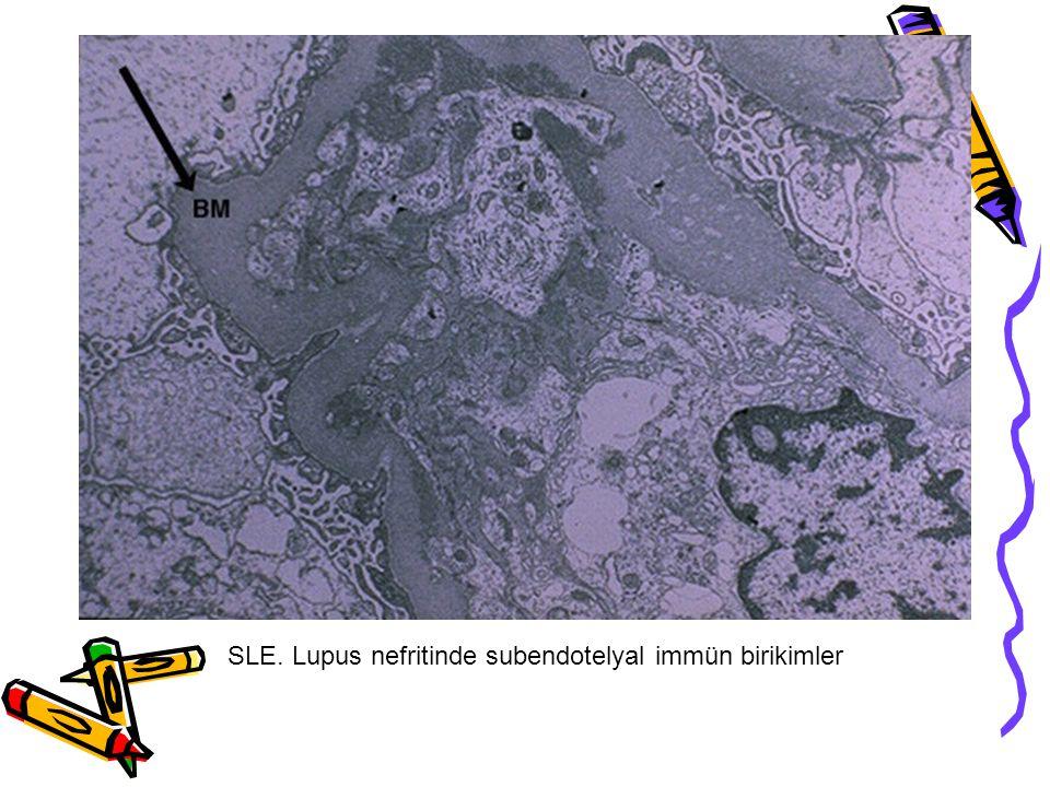 SLE. Lupus nefritinde subendotelyal immün birikimler