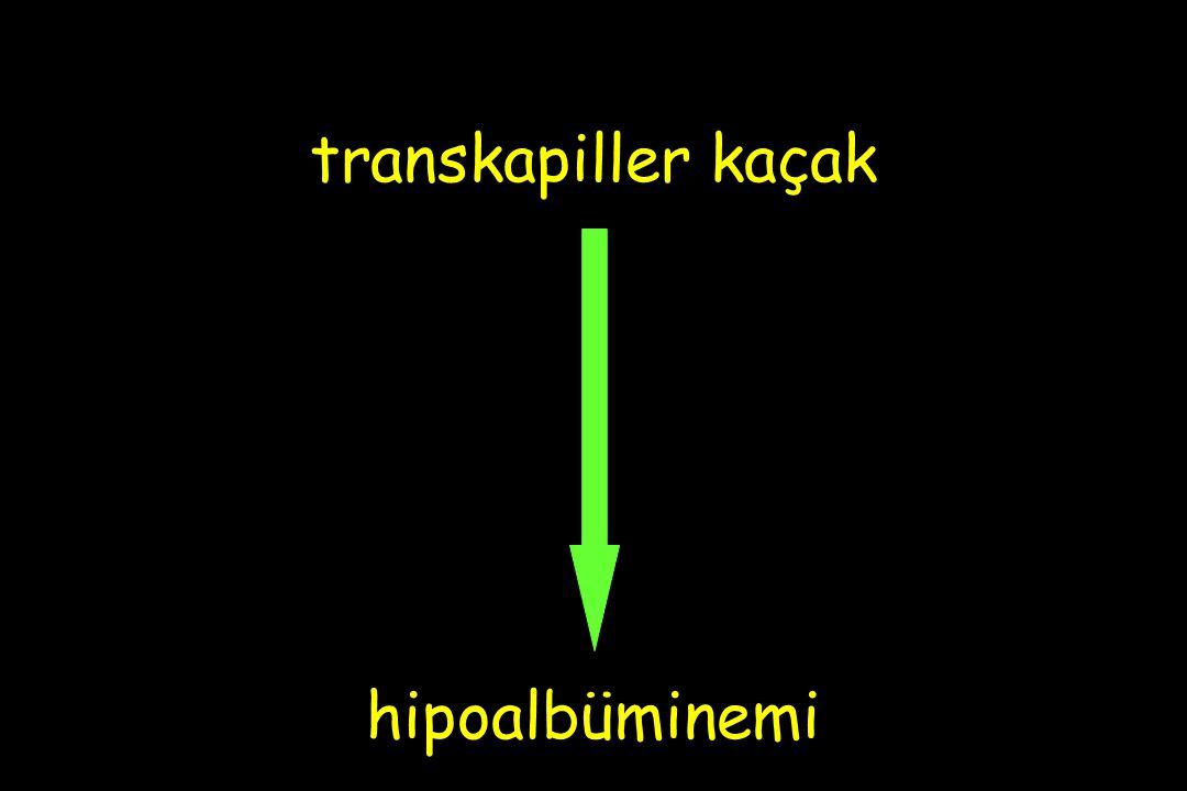 transkapiller kaçak hipoalbüminemi