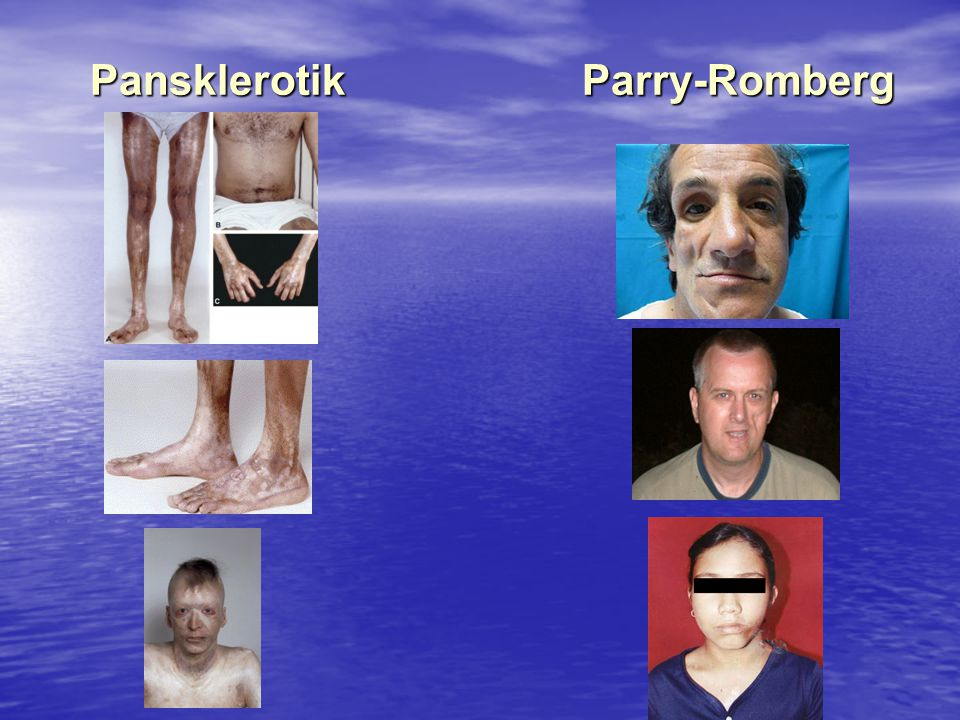 Pansklerotik Parry-Romberg