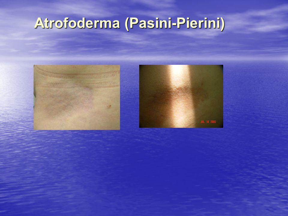 Atrofoderma (Pasini-Pierini)