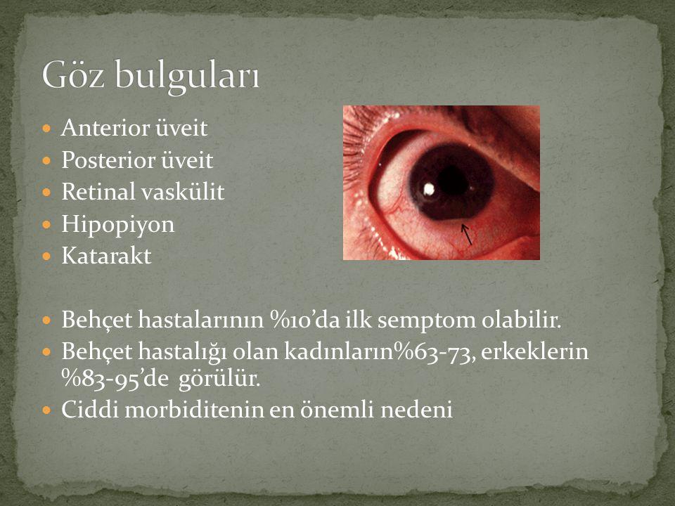 Anterior üveit Posterior üveit Retinal vaskülit Hipopiyon Katarakt Behçet hastalarının %10'da ilk semptom olabilir. Behçet hastalığı olan kadınların%6