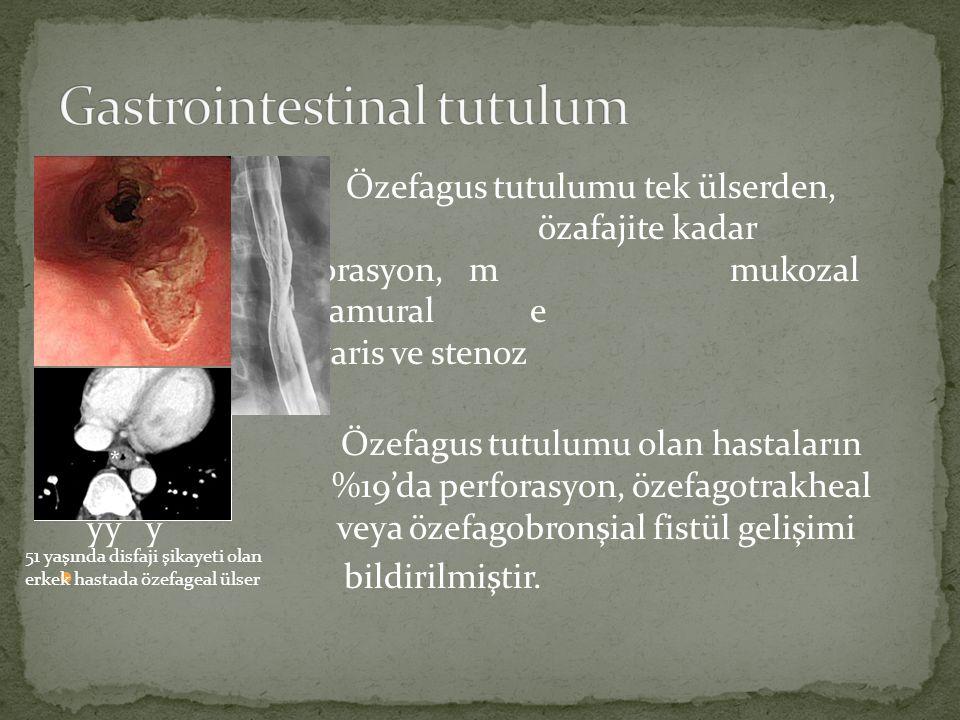 Özefagus tutulumu tek ülserden, diffüz ö özafajite kadar değişebilir. Perforasyon, m mukozal disseksiyon, intramural e hematom, varis ve stenoz görüle