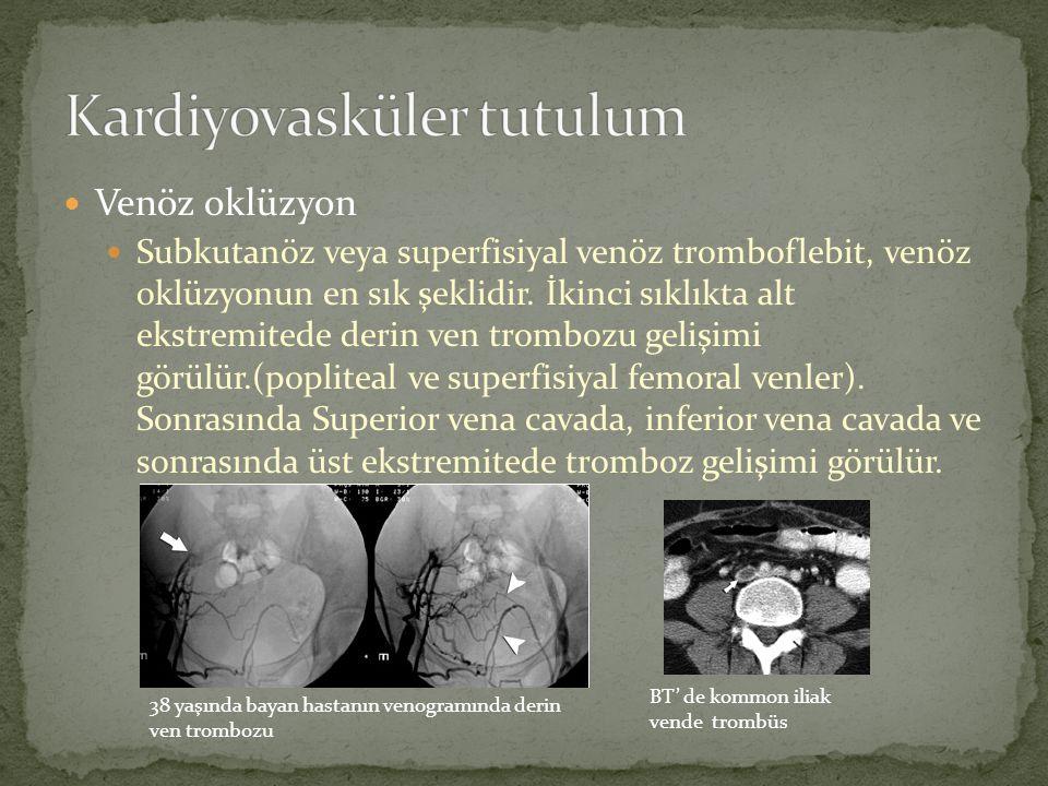 Venöz oklüzyon Subkutanöz veya superfisiyal venöz tromboflebit, venöz oklüzyonun en sık şeklidir. İkinci sıklıkta alt ekstremitede derin ven trombozu