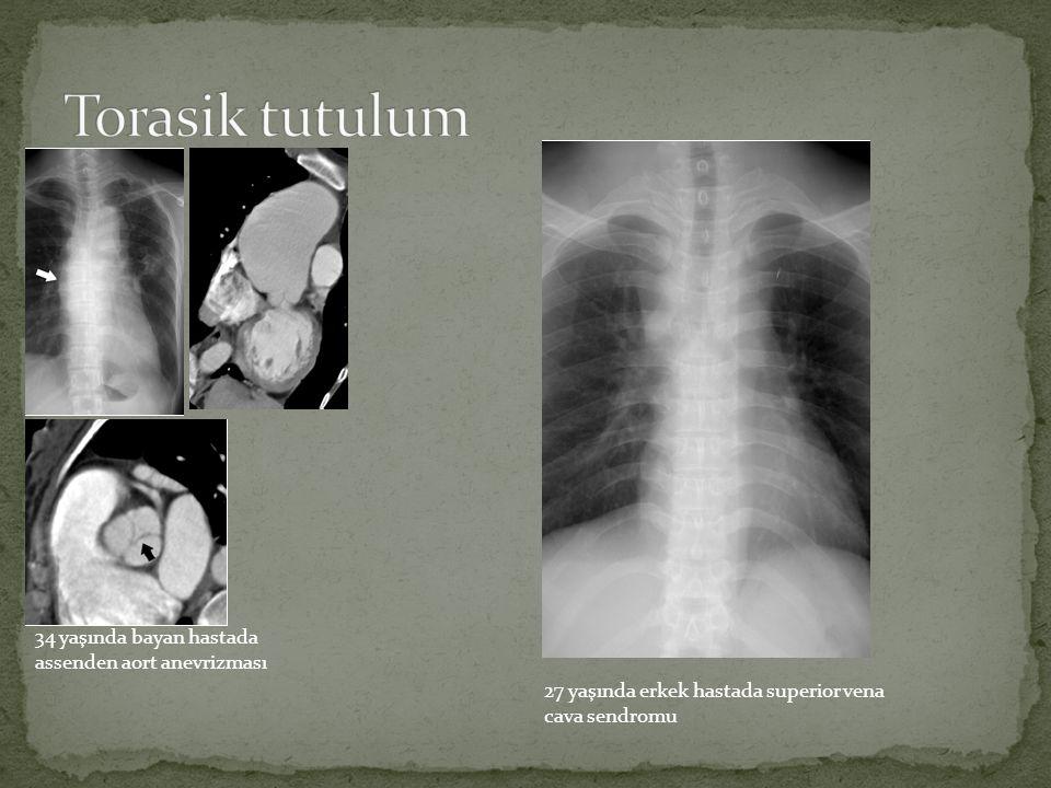 34 yaşında bayan hastada assenden aort anevrizması 27 yaşında erkek hastada superior vena cava sendromu