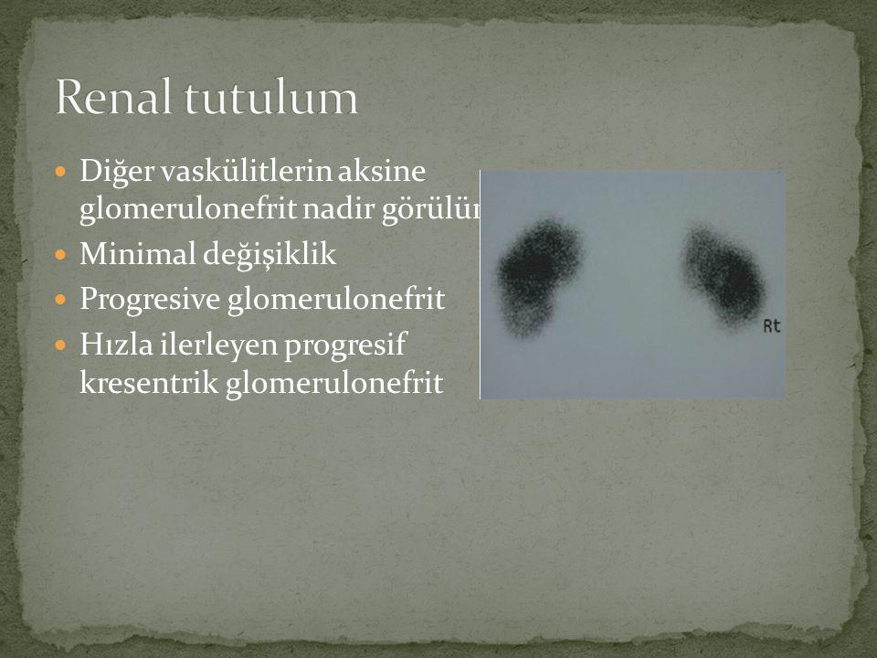 Diğer vaskülitlerin aksine glomerulonefrit nadir görülür. Minimal değişiklik Progresive glomerulonefrit Hızla ilerleyen progresif kresentrik glomerulo