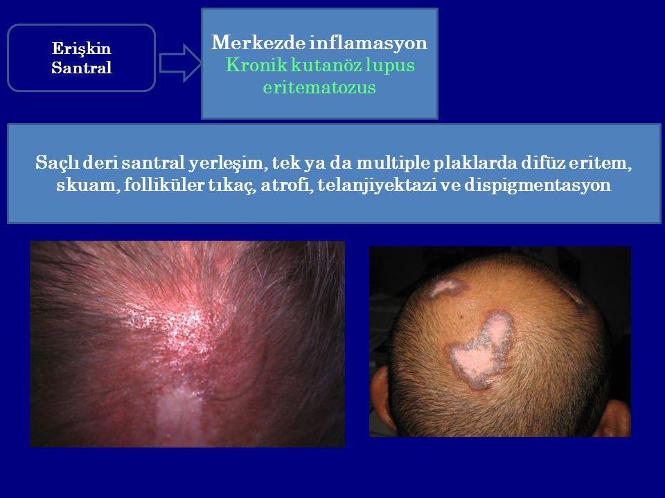 Saçlı deri santral yerleşim, tek ya da multiple plaklarda difüz eritem, skuam, folliküler tıkaç, atrofi, telanjiyektazi ve dispigmentasyon Merkezde in