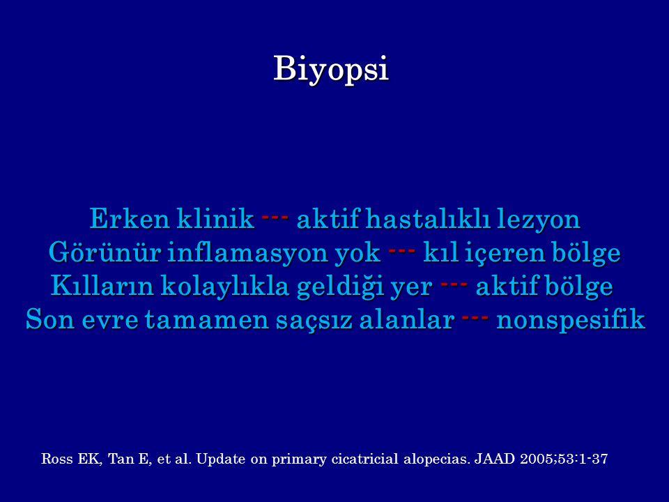 Biyopsi Erken klinik --- aktif hastalıklı lezyon Görünür inflamasyon yok --- kıl içeren bölge Kılların kolaylıkla geldiği yer --- aktif bölge Son evre