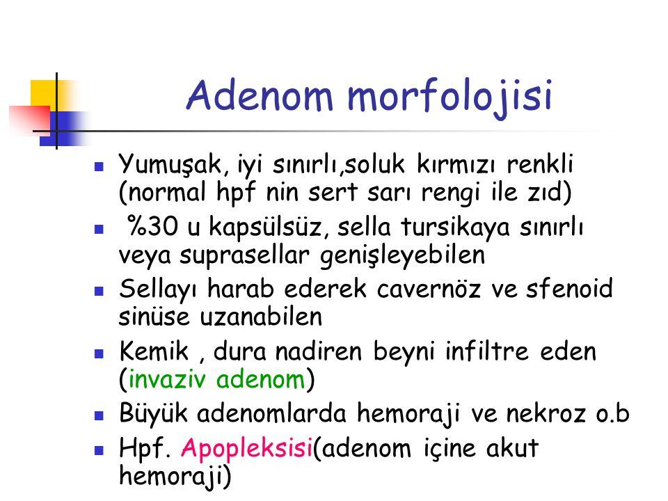 Adenom morfolojisi Yumuşak, iyi sınırlı,soluk kırmızı renkli (normal hpf nin sert sarı rengi ile zıd) %30 u kapsülsüz, sella tursikaya sınırlı veya su