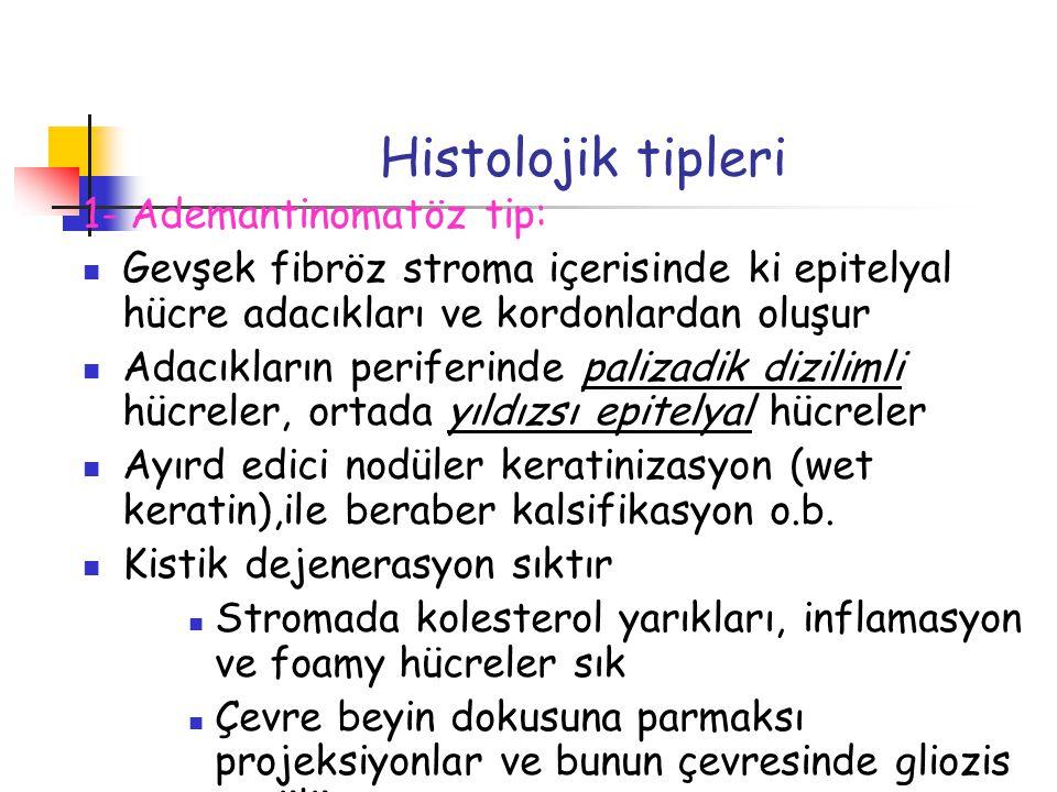Histolojik tipleri 1- Ademantinomatöz tip: Gevşek fibröz stroma içerisinde ki epitelyal hücre adacıkları ve kordonlardan oluşur Adacıkların periferind