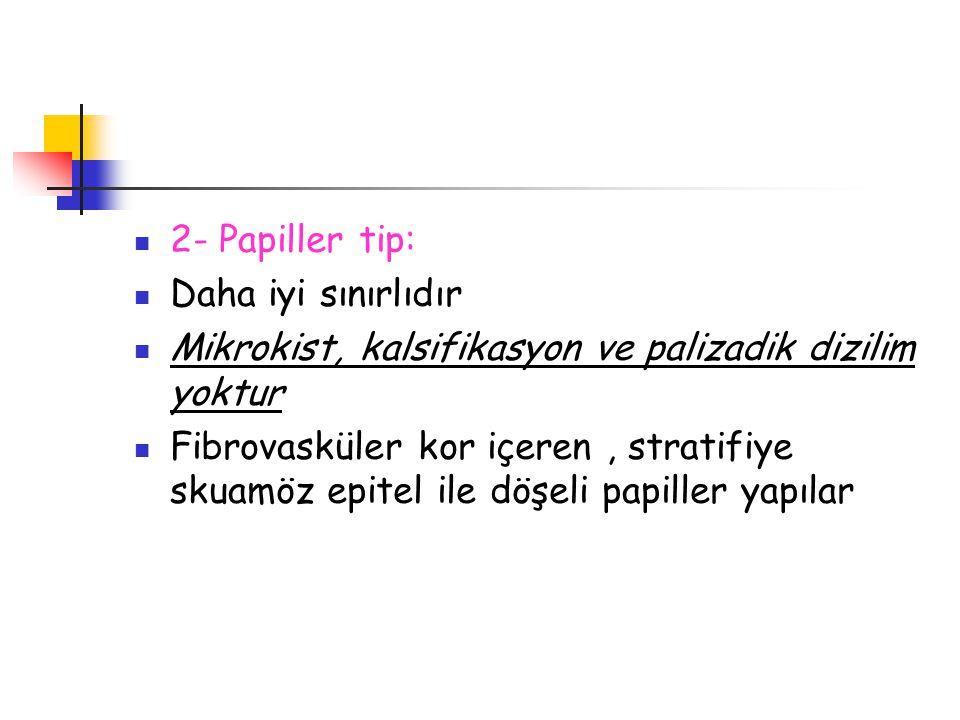 2- Papiller tip: Daha iyi sınırlıdır Mikrokist, kalsifikasyon ve palizadik dizilim yoktur Fibrovasküler kor içeren, stratifiye skuamöz epitel ile döşe