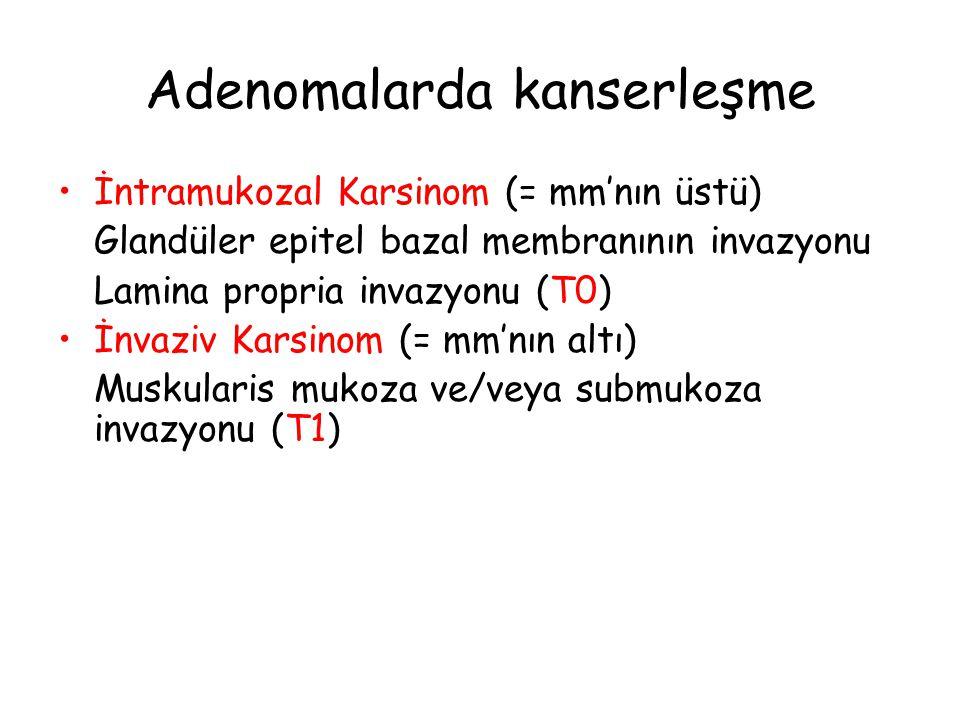Adenomalarda kanserleşme İntramukozal Karsinom (= mm'nın üstü) Glandüler epitel bazal membranının invazyonu Lamina propria invazyonu (T0) İnvaziv Kars