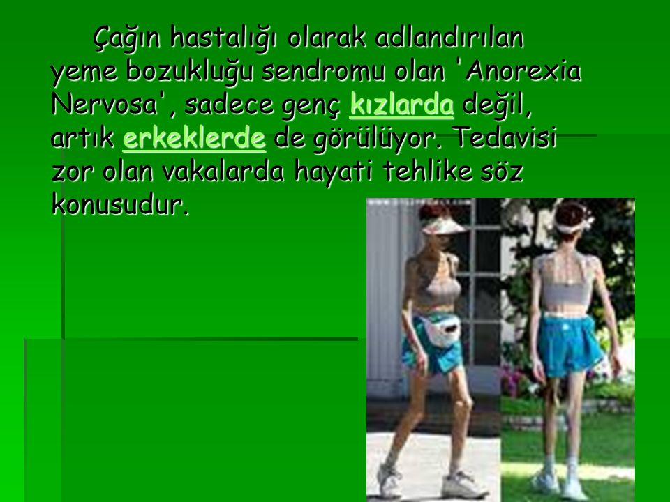 Çağın hastalığı olarak adlandırılan yeme bozukluğu sendromu olan 'Anorexia Nervosa', sadece genç kızlarda değil, artık erkeklerde de görülüyor. Tedavi