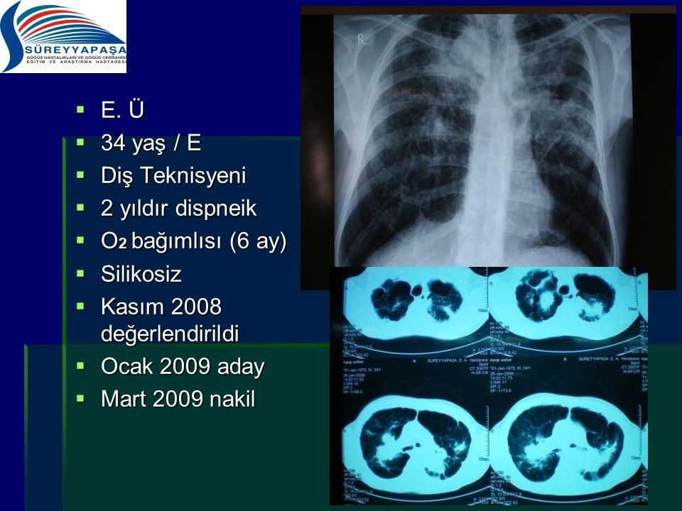  E. Ü  34 yaş / E  Diş Teknisyeni  2 yıldır dispneik  O 2 bağımlısı (6 ay)  Silikosiz  Kasım 2008 değerlendirildi  Ocak 2009 aday  Mart 2009