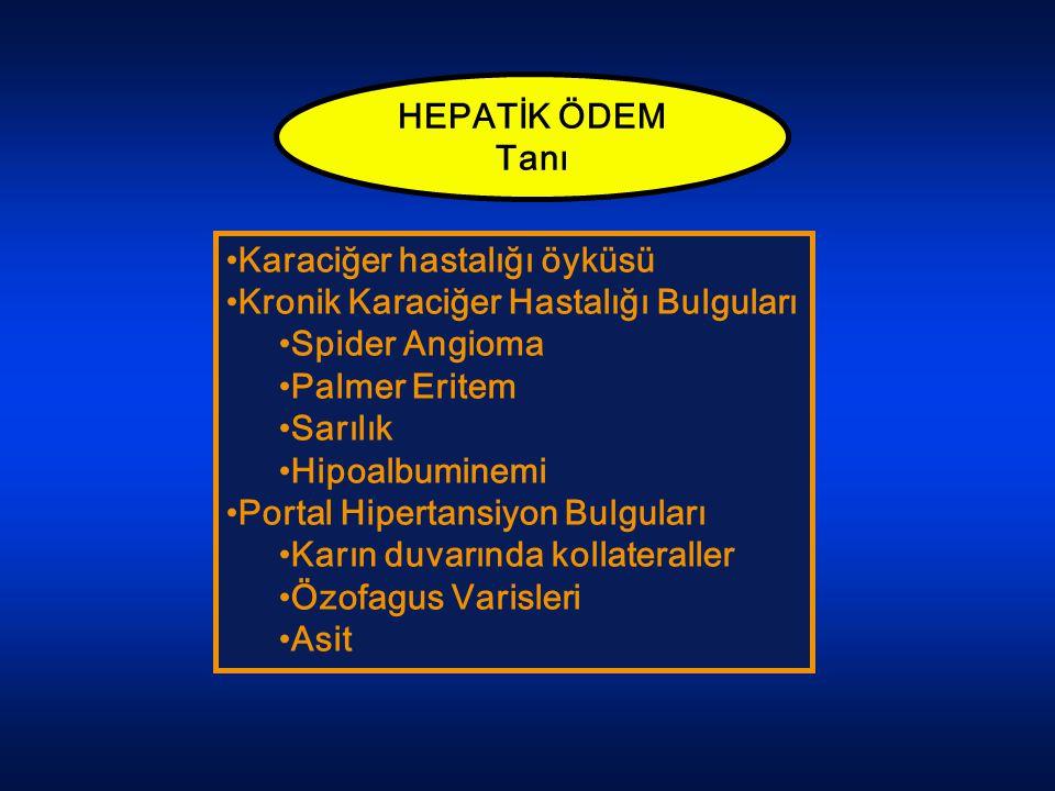 HEPATİK ÖDEM Tanı Karaciğer hastalığı öyküsü Kronik Karaciğer Hastalığı Bulguları Spider Angioma Palmer Eritem Sarılık Hipoalbuminemi Portal Hipertans
