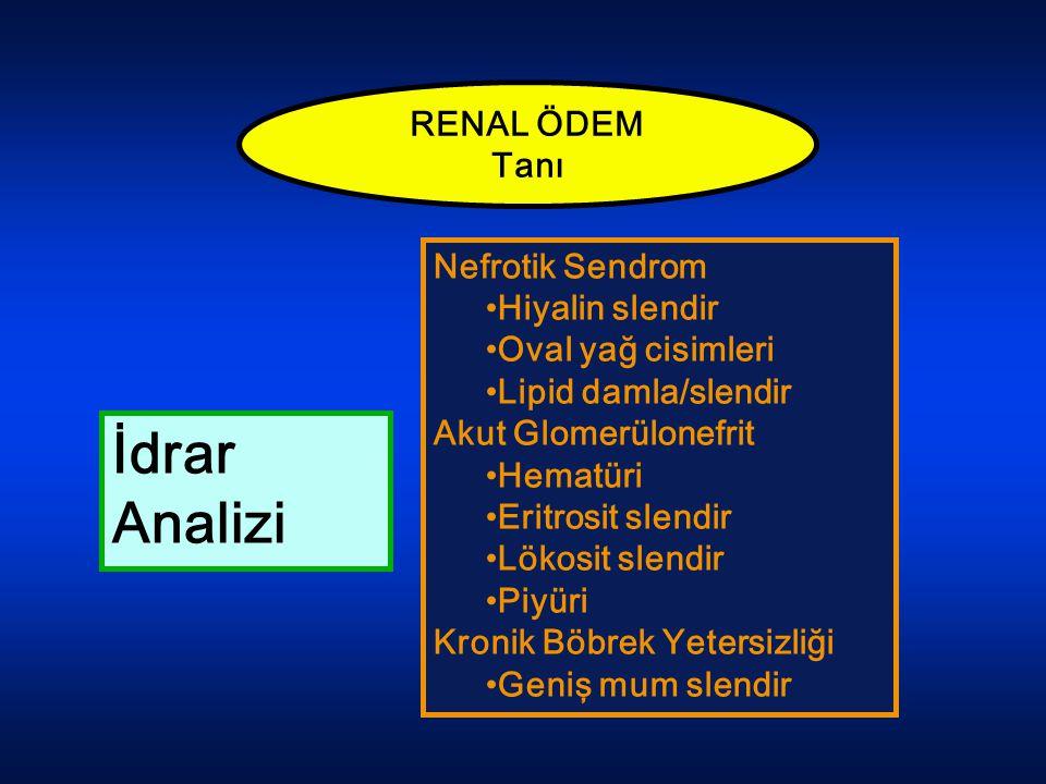 RENAL ÖDEM Tanı Nefrotik Sendrom Hiyalin slendir Oval yağ cisimleri Lipid damla/slendir Akut Glomerülonefrit Hematüri Eritrosit slendir Lökosit slendi