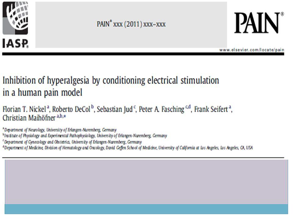 Tartışma Nondermatomal somatosensoriyal defisiti olan kronik ağrılı hastalarda 20 Hz stimülasyon sonrası gelişen hipoaljezi anestezikler tarafından bloke edilememiştir Bu durum ise santral ağrı mekanizmaları ile açıklanabilmektedir