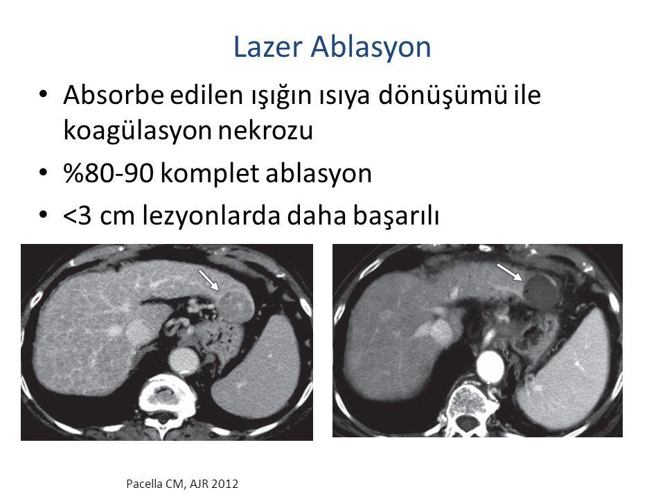 Lazer Ablasyon Absorbe edilen ışığın ısıya dönüşümü ile koagülasyon nekrozu %80-90 komplet ablasyon <3 cm lezyonlarda daha başarılı Pacella CM, AJR 20