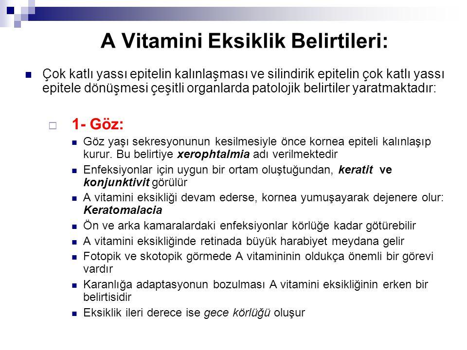 A Vitamini Eksiklik Belirtileri: Çok katlı yassı epitelin kalınlaşması ve silindirik epitelin çok katlı yassı epitele dönüşmesi çeşitli organlarda patolojik belirtiler yaratmaktadır:  1- Göz: Göz yaşı sekresyonunun kesilmesiyle önce kornea epiteli kalınlaşıp kurur.