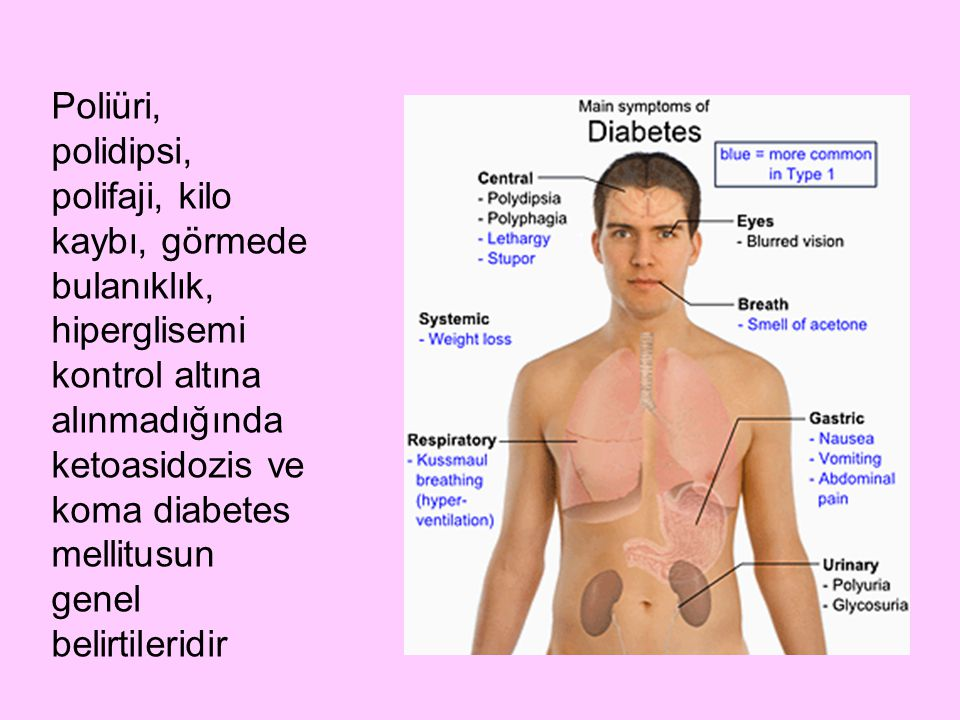 Poliüri, polidipsi, polifaji, kilo kaybı, görmede bulanıklık, hiperglisemi kontrol altına alınmadığında ketoasidozis ve koma diabetes mellitusun genel